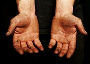 Main thumb dirty hands
